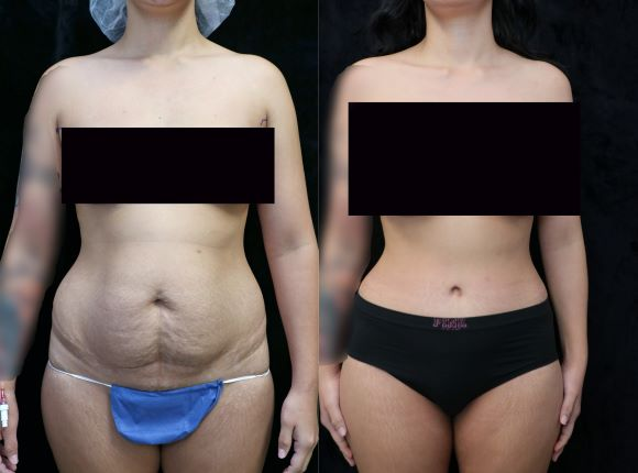 front before and after photos tummy tuck