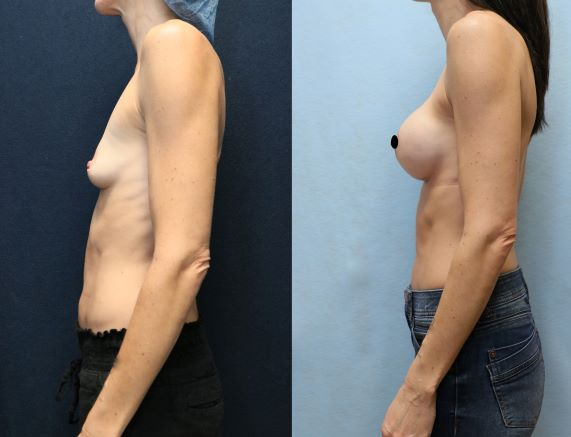 breast augmentation before and after left side