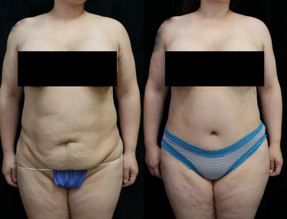 tummy tuck before and after photos front