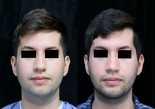 chin augmentation, rhinoplasty, neck liposuction front