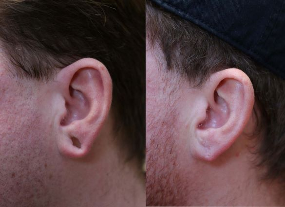 earlobe repair left side photo before and after