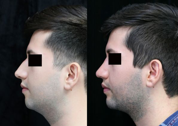 chin augmentation, rhinoplasty, neck liposuction left