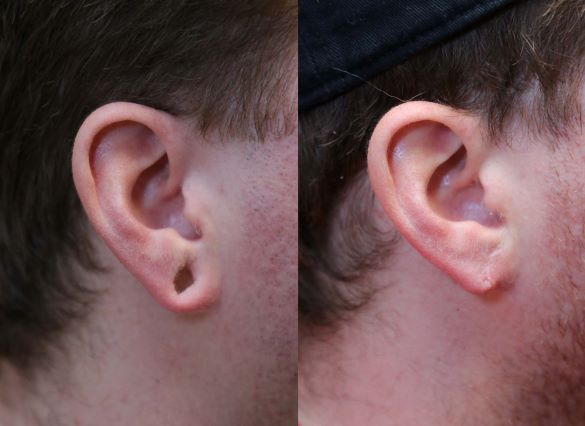 earlobe repair right side photo before and after