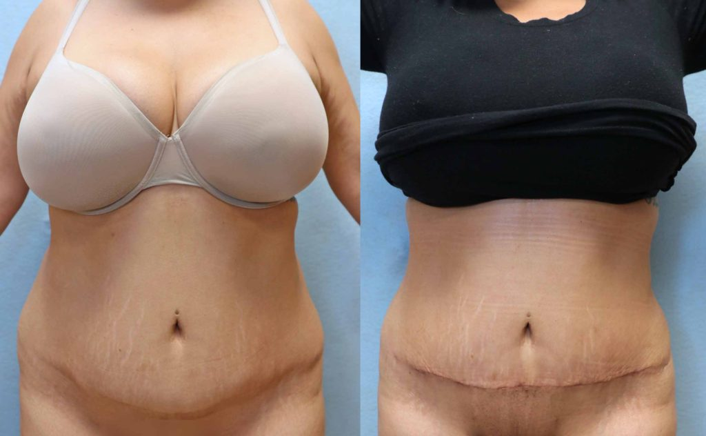 mini tummy tuck orange county front