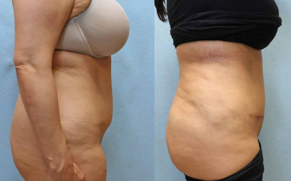 mini tummy tuck orange county before and after