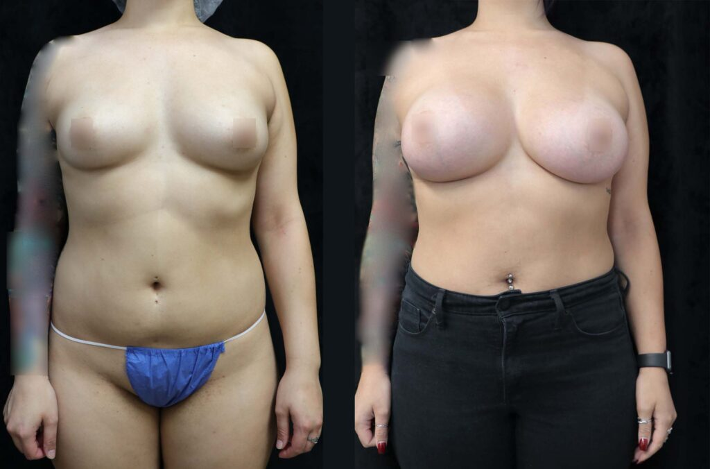 breast augmentation before and after front
