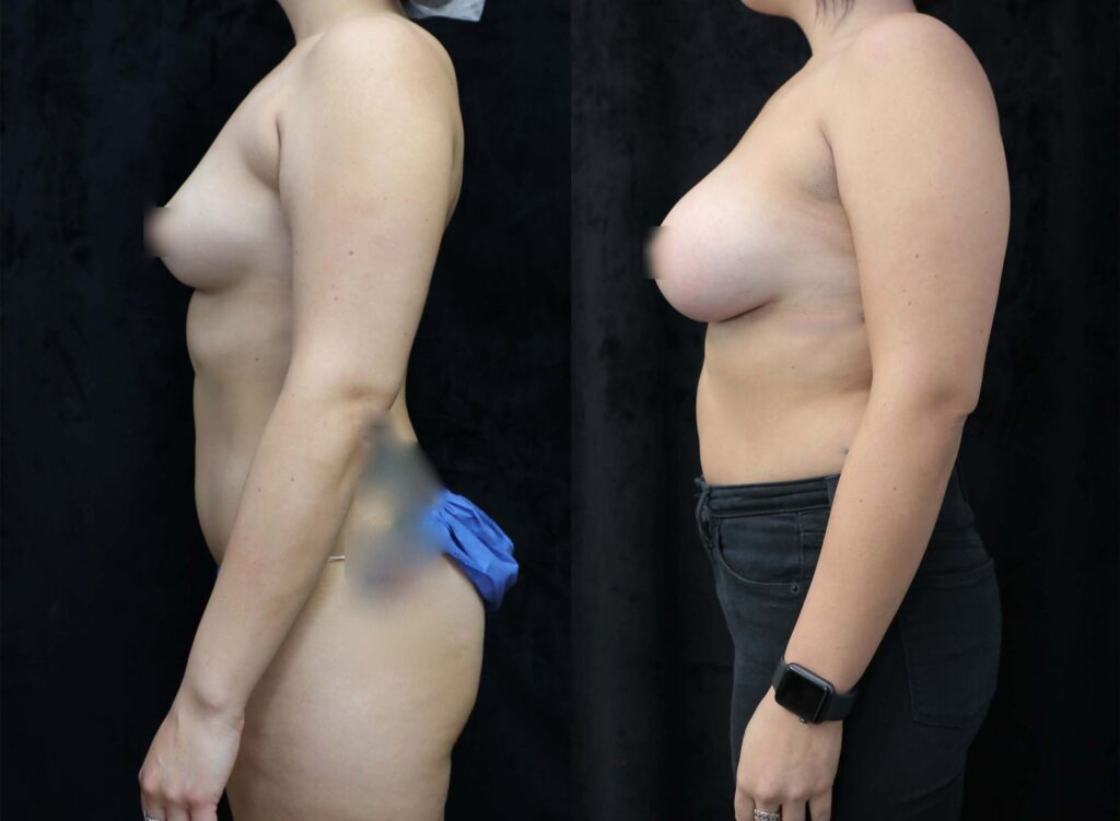 breast augmentation before and after facing left