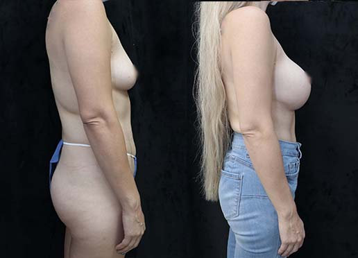 Breast implant before and after