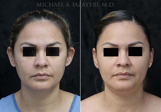 otoplasty before and after front