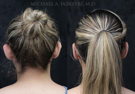 otoplasty before and after back