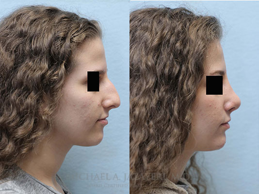 rhinoplasty before and after right
