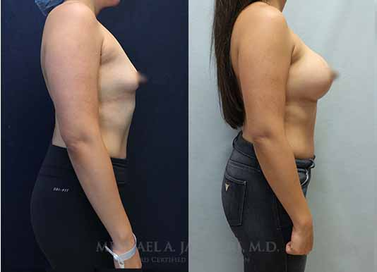 bilateral breast augmentation before and after